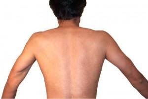 Как избавиться от прыщей на спине